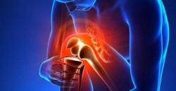 Dolore al ginocchio (gonalgia)
