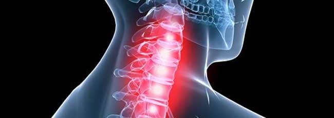 Lfk a una sporgenza e un reparto lombare osteochondrosis